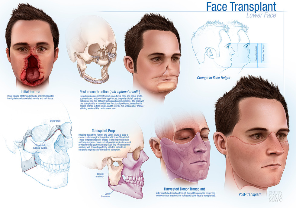 Face Transplant Overview