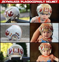 Custom Painted Plagiocephaly Helmet