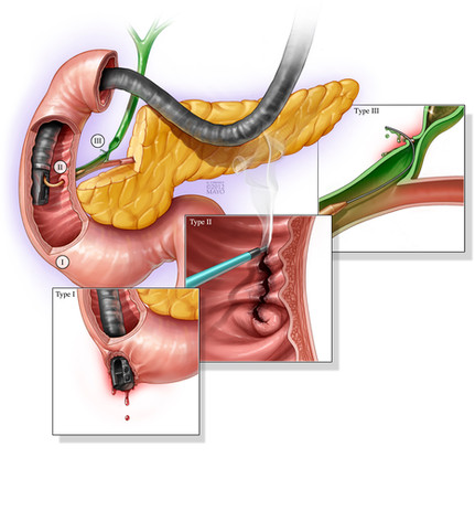 ERCP - Common Injuries