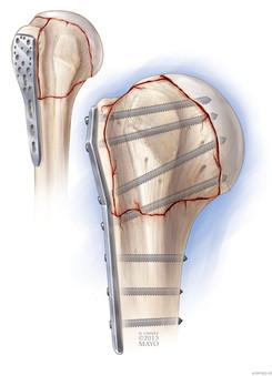 Proximal Humerus Fracture Repair