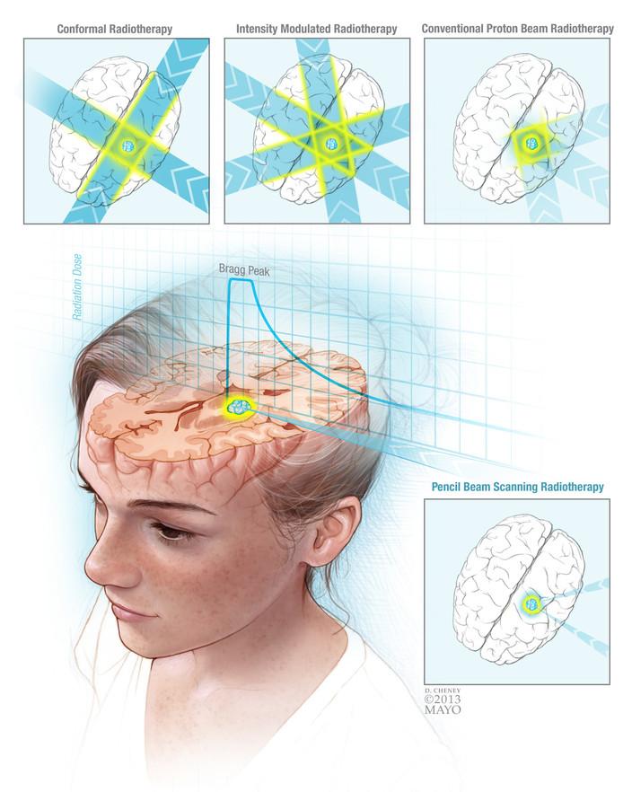 Pencil Beam Radiotherapy