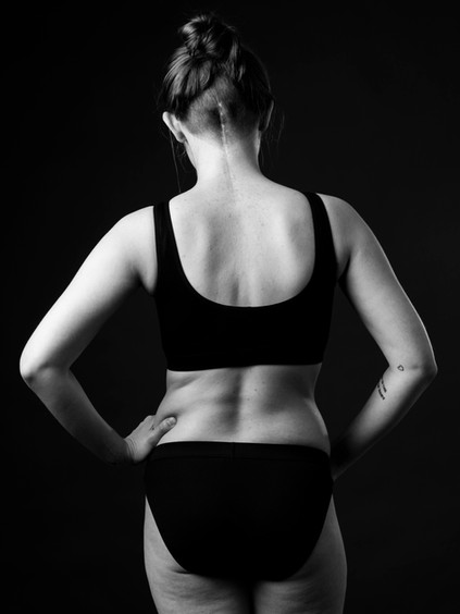 A full length black and white photo of Charlie from behind wearing black pants and a black bra with her hands on her hips. There is a long, straight scar which begins between the shoulders and draws a line up the back of the head ending in line with the ears. There are small pimples on her back and around the scar. The woman has brown hair tied in a bun on the top of her head and the back of her head is shaved quite short around the scar.