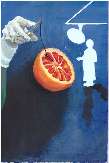 A dark blue background, in the centre of the painting is half an orange which casts a dark shadow to the bottom left, the orange has surgical stitching along one segment. To the left is a surgeons hand and arm holding gold scissors with the surgical thread attached. To the right is a small white figure, no details are on this figure they are a blank white shape, resembaling a doctor or surgeon, they have two black shadows below them in different directions. There is also a white block outline of a surgical lamp above this figure.