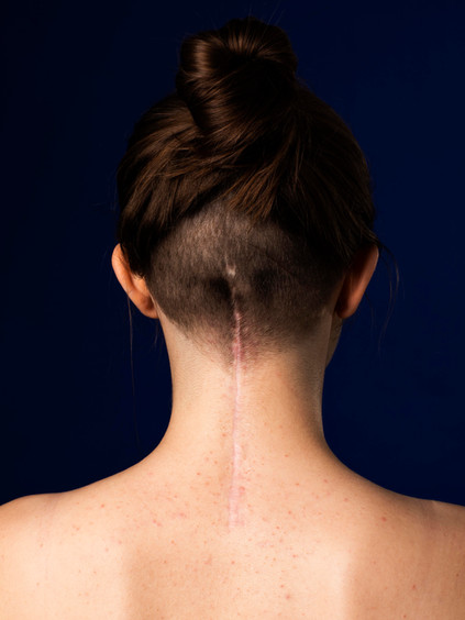 A close photo of the back of Charlie's neck, a young white woman. There is a long, straight scar which begins between the shoulders and draws a line up the back of the head ending in line with the ears. There are small pimples on her back and around the scar. The woman has brown hair tied in a bun on the top of her head and the back of her head is shaved quite short around the scar. The background of the image is dark blue.