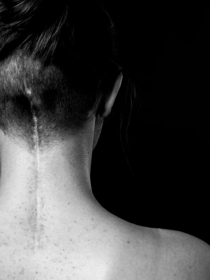 A close up black and white photo of the back of Charlie's neck, a young white woman. There is a long, straight scar which begins between the shoulders and draws a line up the back of the head ending in line with the ears. There are small pimples on her back and around the scar. The woman has brown hair tied in a bun on the top of her head and the back of her head is shaved quite short around the scar. The image is of the right hand side of her upper back, her right shoulder is in shot.
