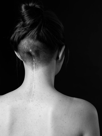 A close up black and white photo of the back of Charlie's neck, a young white woman. There is a long, straight scar which begins between the shoulders and draws a line up the back of the head ending in line with the ears. There are small pimples on her back and around the scar. The woman has brown hair tied in a bun on the top of her head and the back of her head is shaved quite short around the scar.