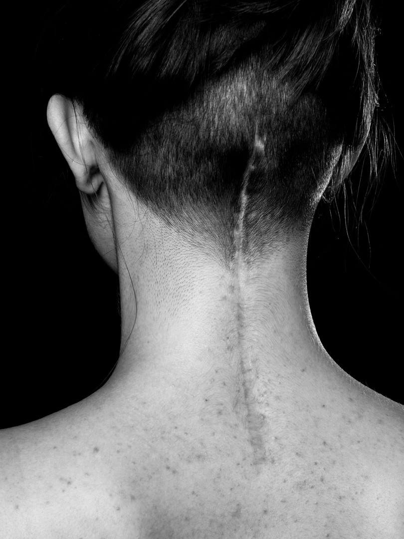 A close up black and white photo of the back of Charlie's neck, a young white woman. She is at a slight angle. There is a long, straight scar which begins between the shoulders and draws a line up the back of the head ending in line with the ears. There are small pimples on her back and around the scar. The woman has brown hair tied in a bun on the top of her head and the back of her head is shaved quite short around the scar.