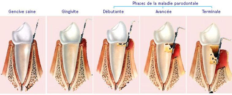 stade-maladie-parodontale.jpg