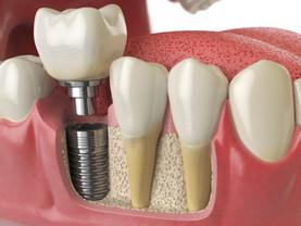 Cómo cuidar mis implantes dentales: 4 pasos importantes