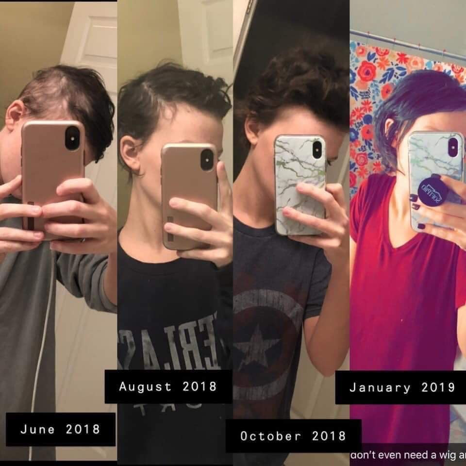 Monat growing healthy hair