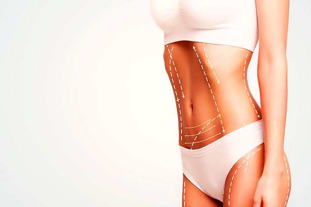 Female%20body%20cosmetic%20surgery%20and