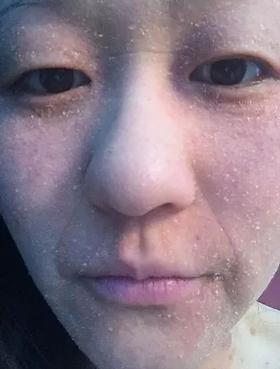 Women with eczema