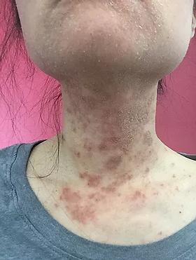 Women with eczema on neck