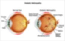Healthy Eye vs Diabetic Retinopathy