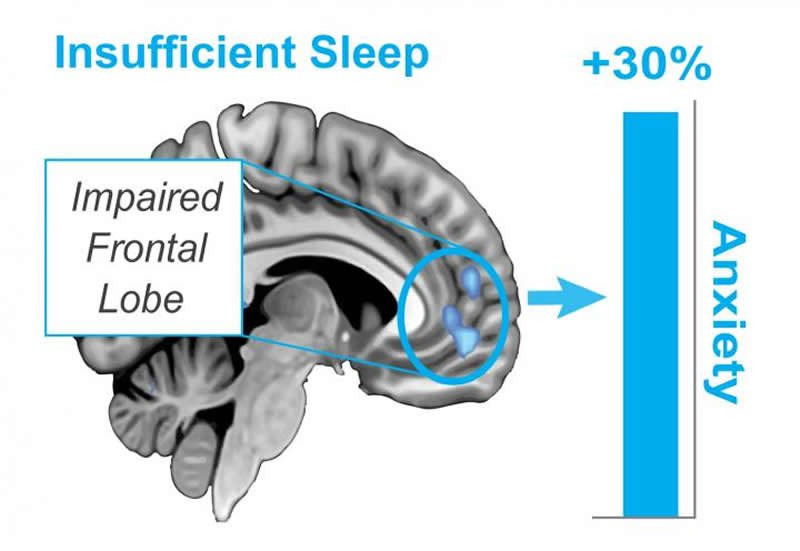 Lack of sleep usually creates 30% more anxiety during the day.