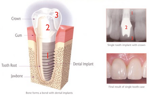 Dental Implant Parts Dr. Sani