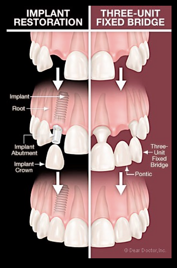 dental implant versus dental bridge
