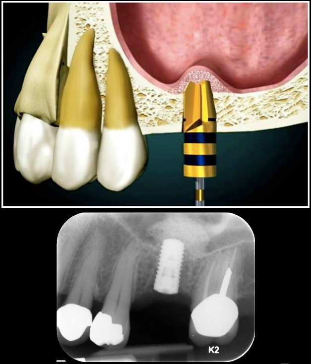 Sinus Lift diagram with implant placement