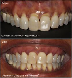 Pinhole Gum Surgery