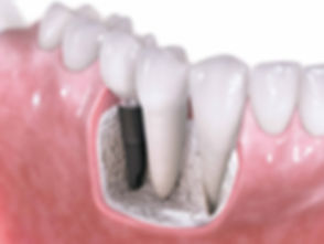 Dentist in Boynton Beach - dental implant and MRI