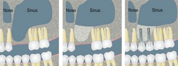 Sinus lifting Dr. Sani