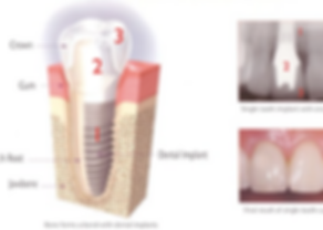 dental implant parts explained