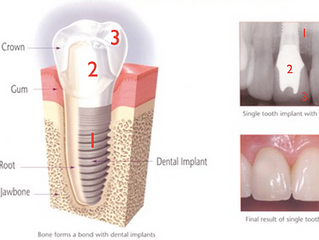 Abutment? Implant? Bone grafting? Making sense of dental implants and the treatment plan given to us