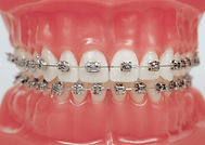 alternative to braces