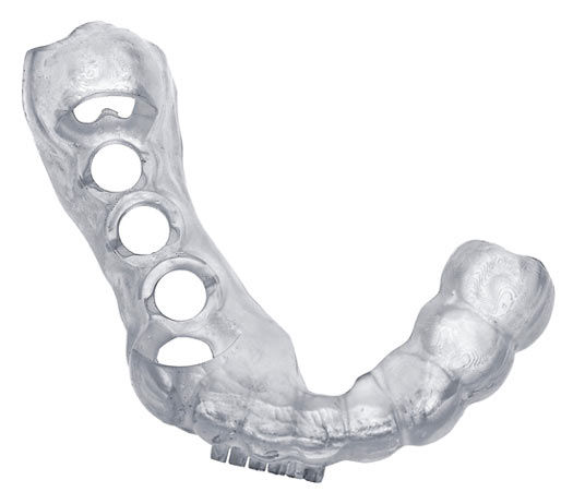3D-printing-dental-surgical-guide-6-3d-p