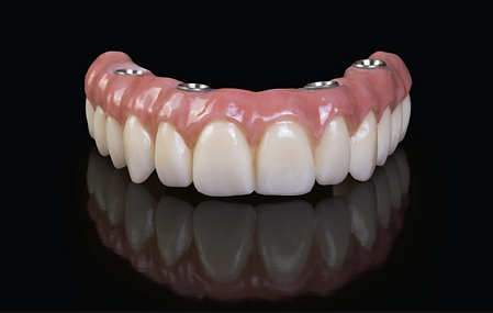 all on 4 final denture Dr. Sani