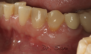after free gingival graft