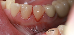 before free gingival graft