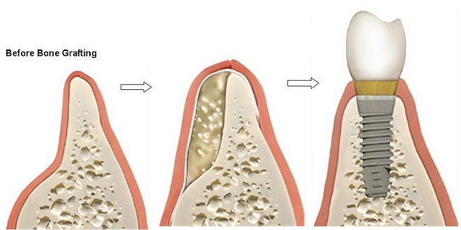 bone grafting for an implant