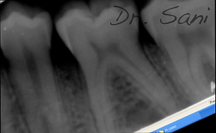 after treatment of periodontal disease