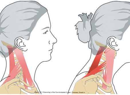 Chronic forward head posture. It's not just how you look.