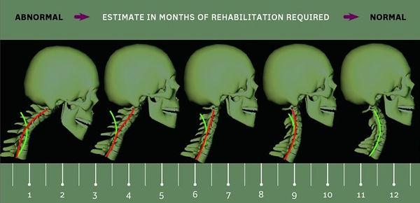 Cervical Estimate of Rehabilitation
