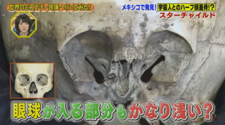 Starchild Skull On Japanese TV
