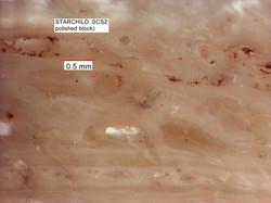 Higher Magnification Back-lit Bone
