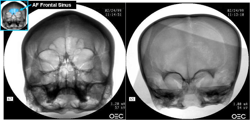 Sinus Comparison