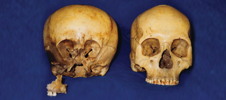 The Two Skulls and Maxilla