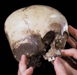 Starchild Skull with Maxilla