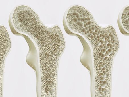 Ostéoporose et homéopathie