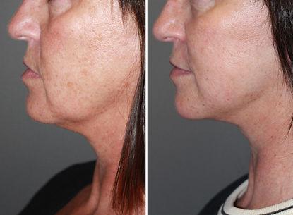 patient-10361-laser-skin-rejuvenation-be