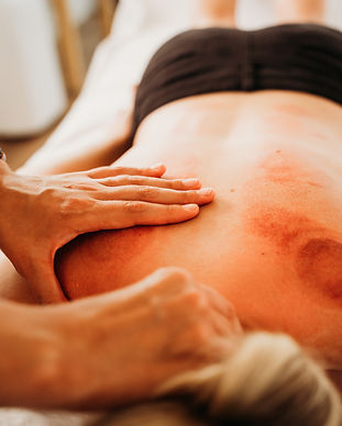 woman with circular cupping marks laying face down on table getting a massage