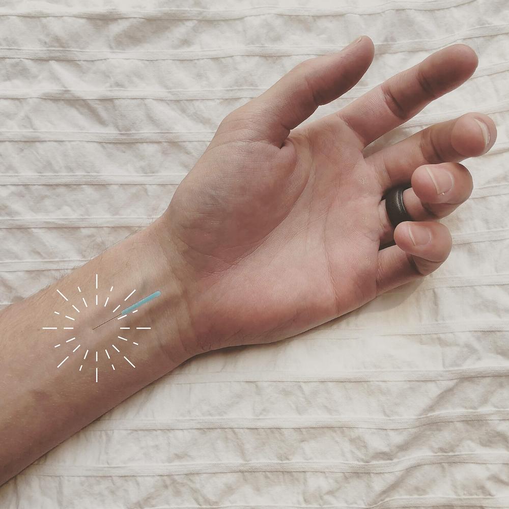 acupuncture, acupuncture denver, acupressure, anxiety, stress, nausea, vomiting