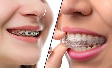 ortodontist diş teli şeffaf ortodonti bursa nilüfer özlüce diş hekimi arman kömür