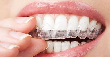şeffaf ortodonti çarpık diş bursa nilüfer özlüce diş hekimi arman kömür