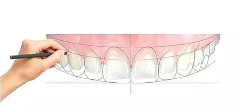doktor arman kömür gülüş tasarımı smile design esteik diş hekimliği