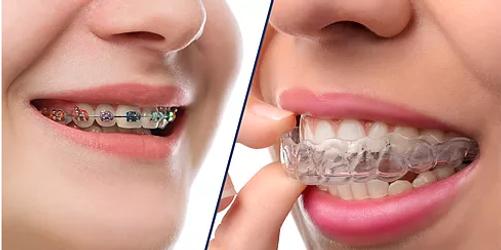doktor arman kömür şeffaf telsiz ortodonti