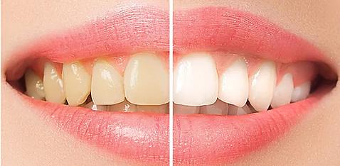 doktor arman kömür diş beyazlatma dental bleaching